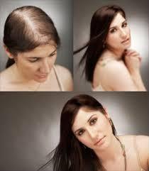 Hói đầu, rụng tóc gây mặc cảm cho bản thân