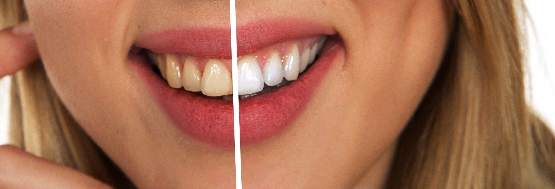 Các sản phẩm kem đánh răng giúp răng miệng chắc khỏe tự tin giao tiếp